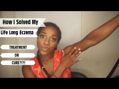 Video Treatment or Cure Eczema??? | Before Photos | Vegan | NaptuRo90