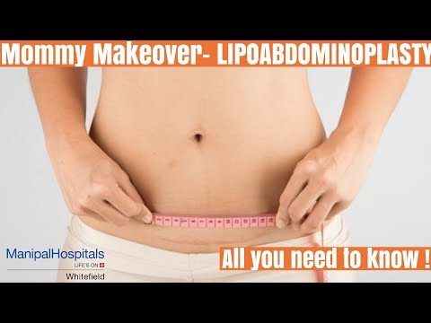What is Lipoabdominoplasty or
