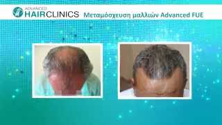 Video Μεταμόσχευσης μαλλιών με τη μέθοδο FUE - Advanced Hair Clinics