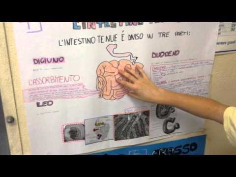 Qual è ipertonica angiopatia fundus