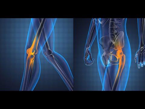 Tratamentul durerii la genunchi în timp ce mergeți