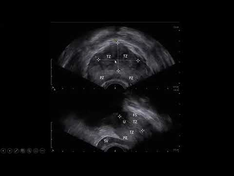 Normal prostate volume radiology