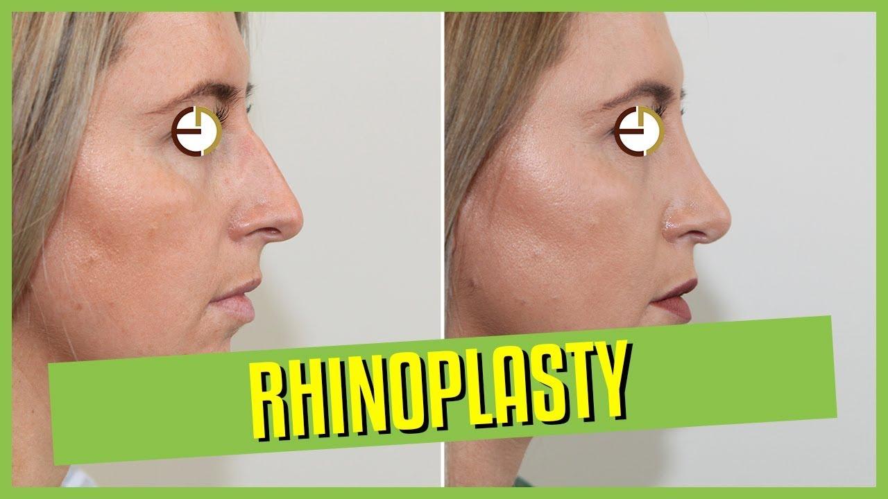 Rhinoplasty & Nose Job Sydney | Dr Eddy Dona