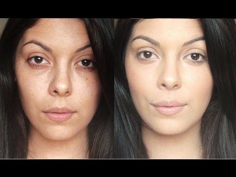 Inaalis ng mga spot edad matapos acne