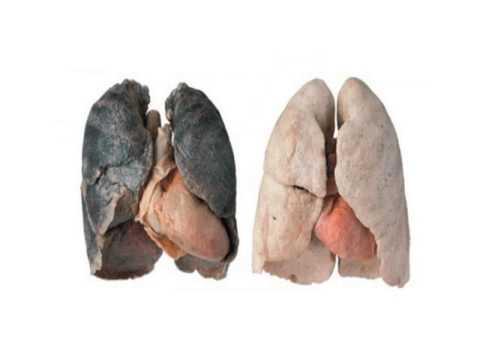 Fumo smesso dei rigonfiamenti di persona