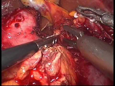 Laparoskopowa pankreatoduodenektomia