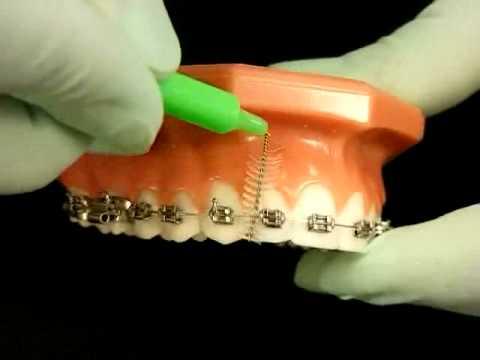 Ortodontik Tellerle Diş Fırçalamak