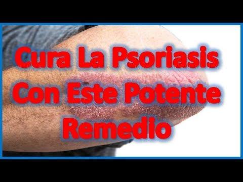 La psoriasis y la patología zhkt
