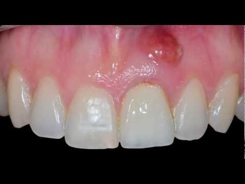 Dental Implant in the Aesthetic Zone