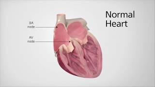 Introduction To Atrial Fibrillation With Electrophysiologist Dr. Kamal Kotak
