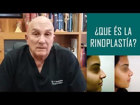 ¿Qué es la Rinoplastía?