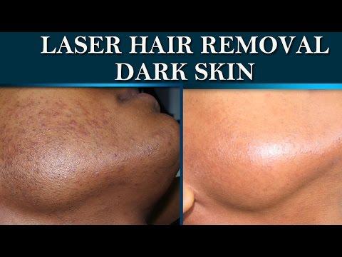 Laser hair removal at Dermalogics. Before & After on dark skin.