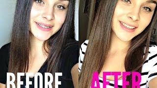 Braces Advice & Q&A + BEFORE and AFTER