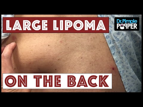 Dr. Pimple Popper: Deep-Set Huge Lipoma on Back