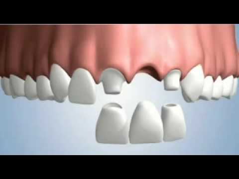 Single tooth treatment