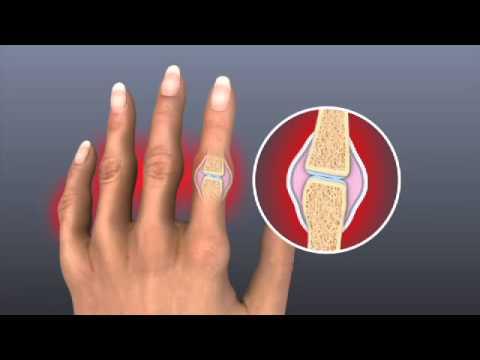 Ujjízületi kezelés orvos
