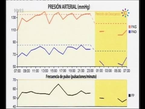 Pulsera que mide la presión arterial para comprar