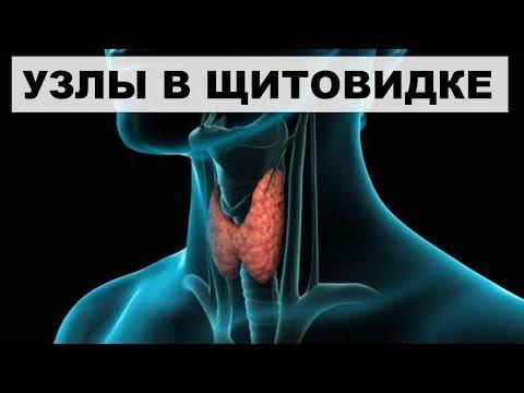 УЗЛЫ ЩИТОВИДНОЙ ЖЕЛЕЗЫ.Норма или болезнь?