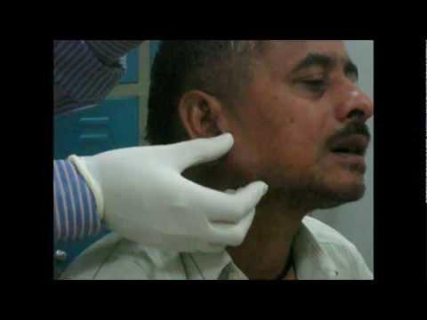 Dermatite di atopic alladulto un forum