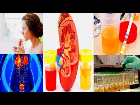 Печень ее симптомы заболевания у женщин