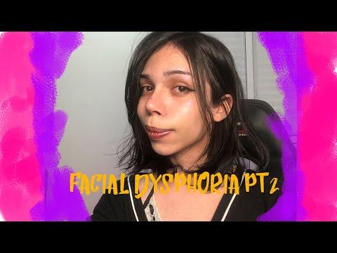 Facial Dysphoria part 2 and Nose Job post op