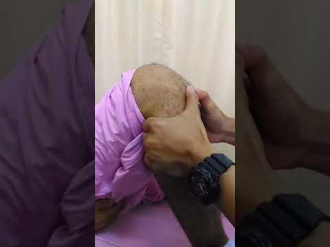 ความคิดเห็นของ hirudotherapy สำหรับขาขอด