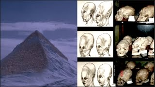 Flash Frozen Civilization found in Antarctica of Elongated Paracus Skulls