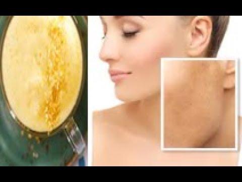Cryomassage facial pigmentation