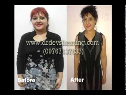 Nawalan siya ng 25 kg sa nakaraang buwan sa isang diyeta
