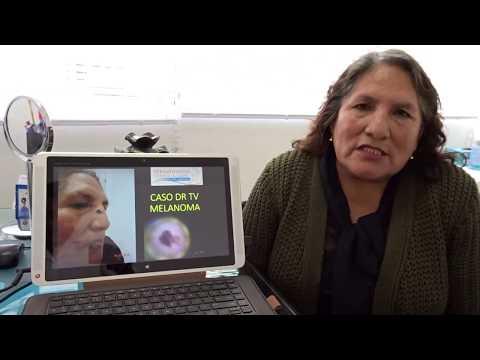 Caso de Digna resuelto en DRTV: Melanoma, Cáncer de Piel