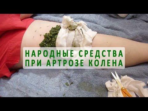 Народные средства для лечения артроза коленного сустава