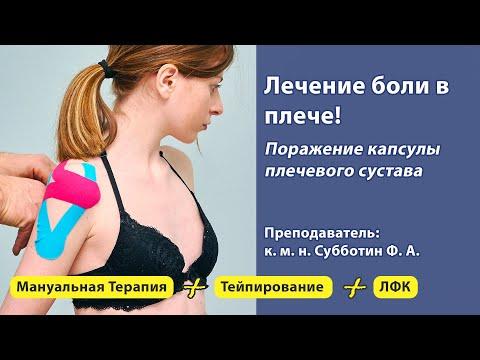 Лечение боли в  плече. Поражение капсулы плечевого сустава.