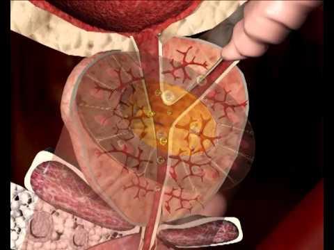Který tráví masáž prostaty