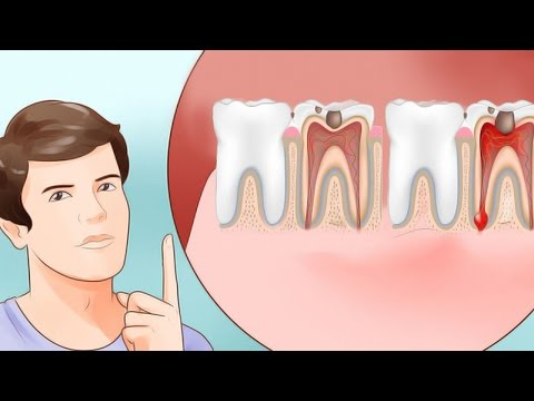 Video 6 Home Remedies for Toothache That Really Work | Natural Cures