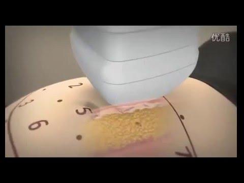 Incinta dopo il trattamento di prostatite