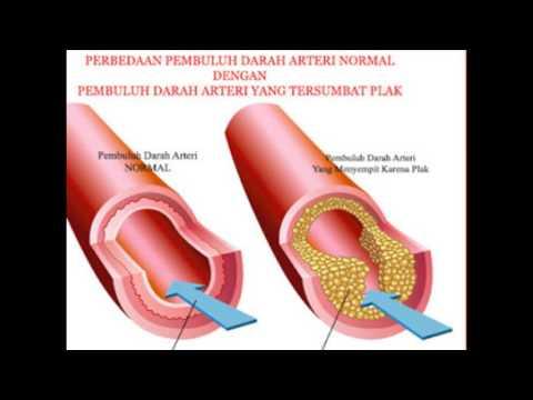 Hipertenzija vagusnog živca