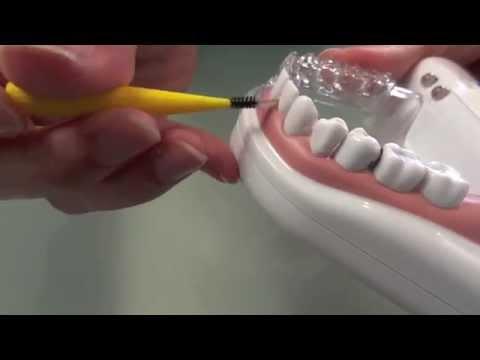Le bon usage du fil dentaire et des brossettes