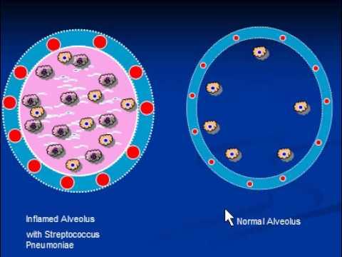 Enterobiosis, mint átvitt