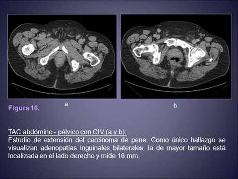 Câtă enterobioză se face în clinică