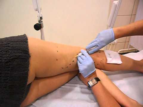 Sklerosirowanije Venen der Beine die Rezensionen