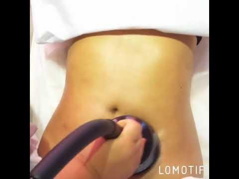 Cum să verificați urologi de prostată