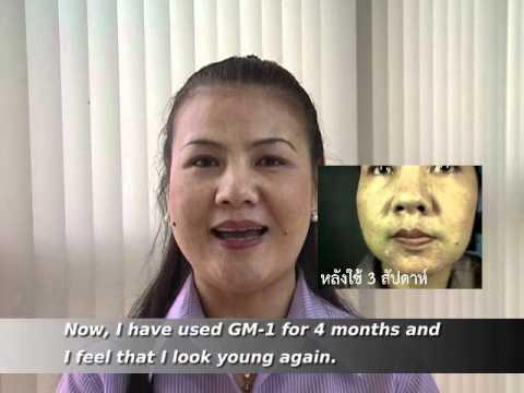 กลากโรคทางพันธุกรรม