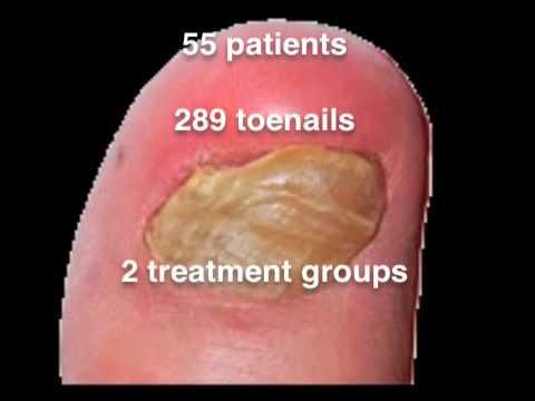 Wie der Arzt die Nägel heißt behandelt
