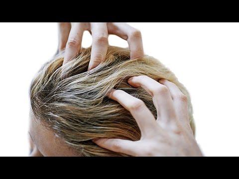 Comme se délivrer pour toujours du psoriasis sur la partie hispide de la tête comme