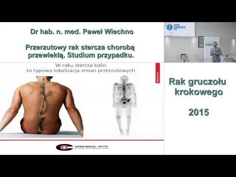 Główne objawy przewlekłego zapalenia gruczołu krokowego u mężczyzn