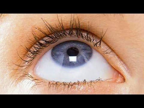 Лазерная коррекция зрения транс-фрк