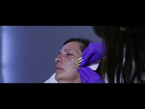 Hogyan kell visszaállítani a vizelet után prosztataműtéttel