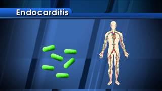 Antibiotic Prophylaxis for Heart Patients