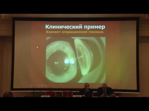 Что такое амблиопия глаза у взрослого