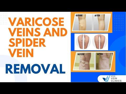 Cibo allatto di espansione varicosa di vene